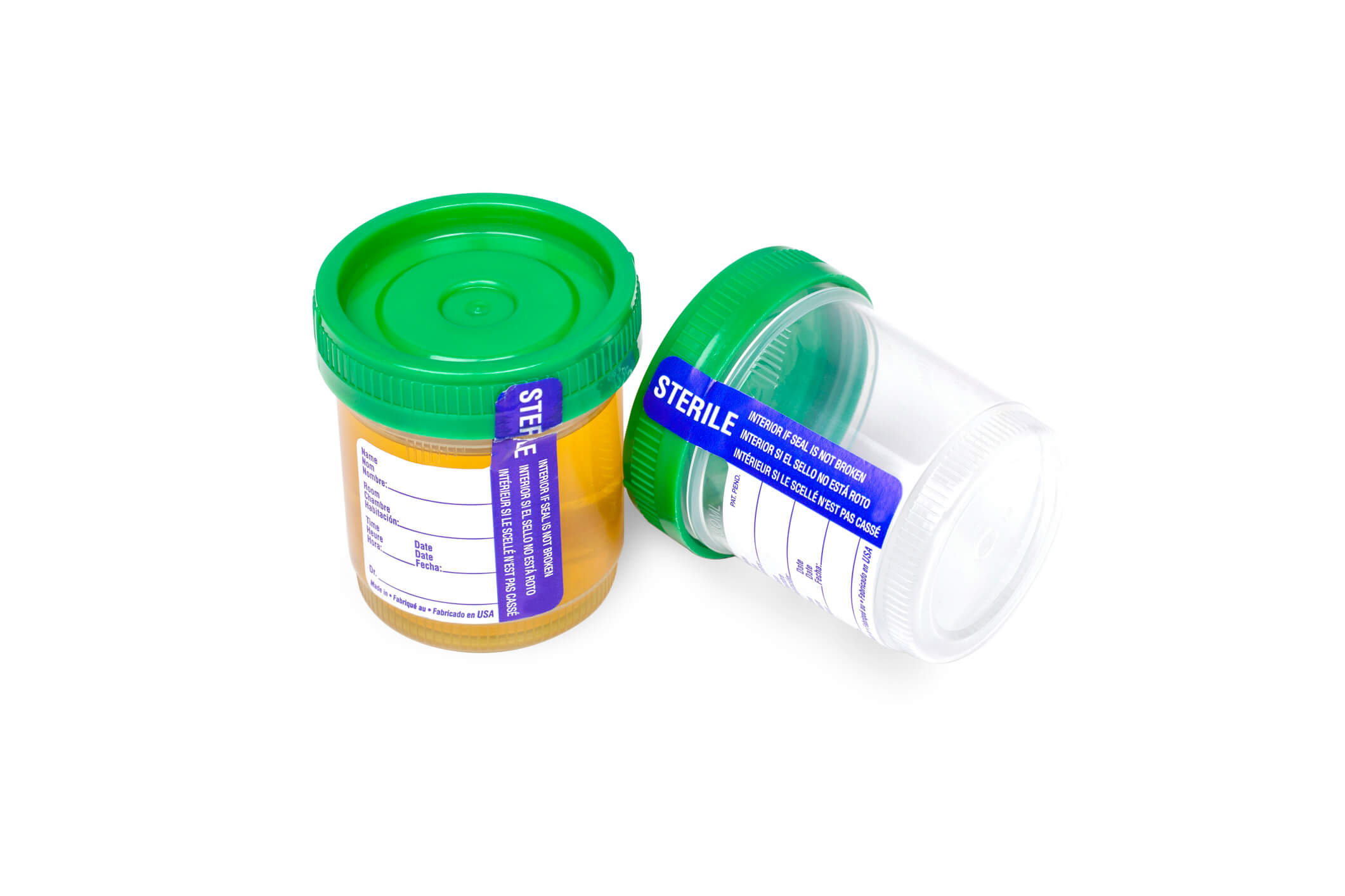 Image: urine sample cups